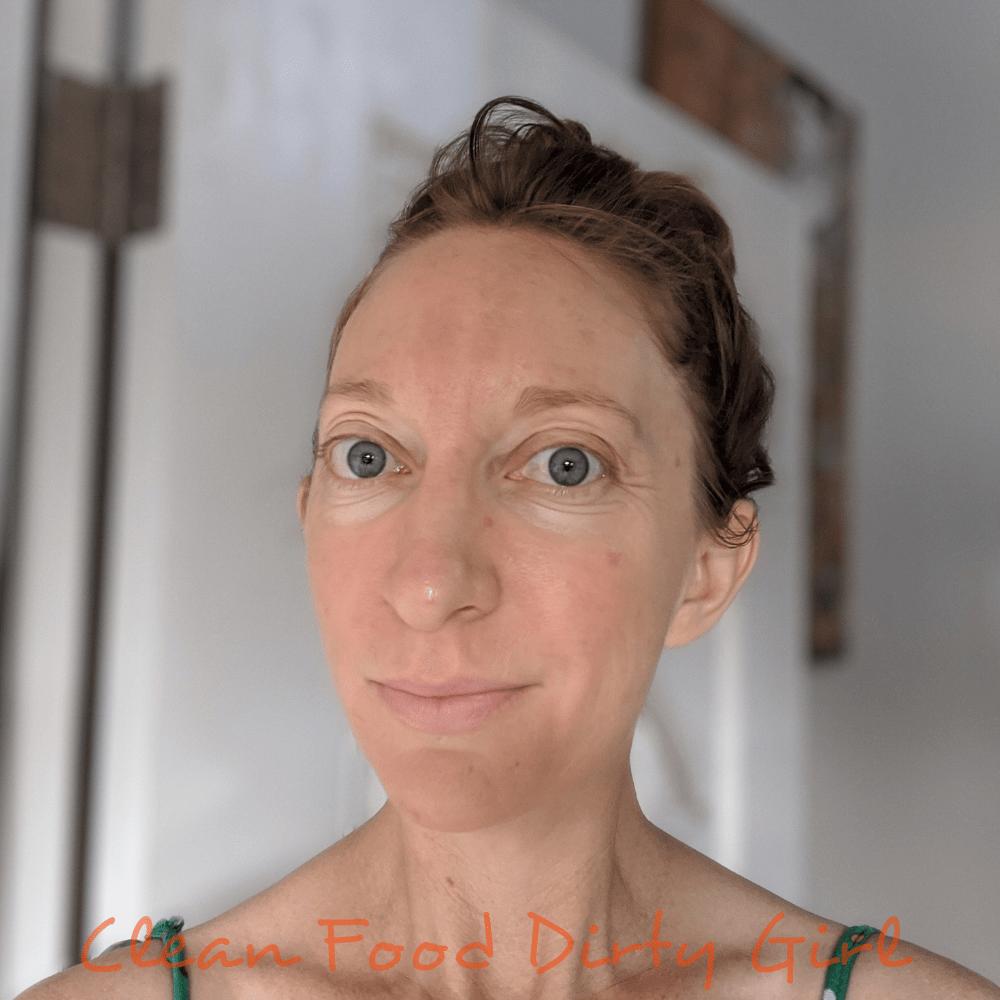 molly's skin periorial dermatitis